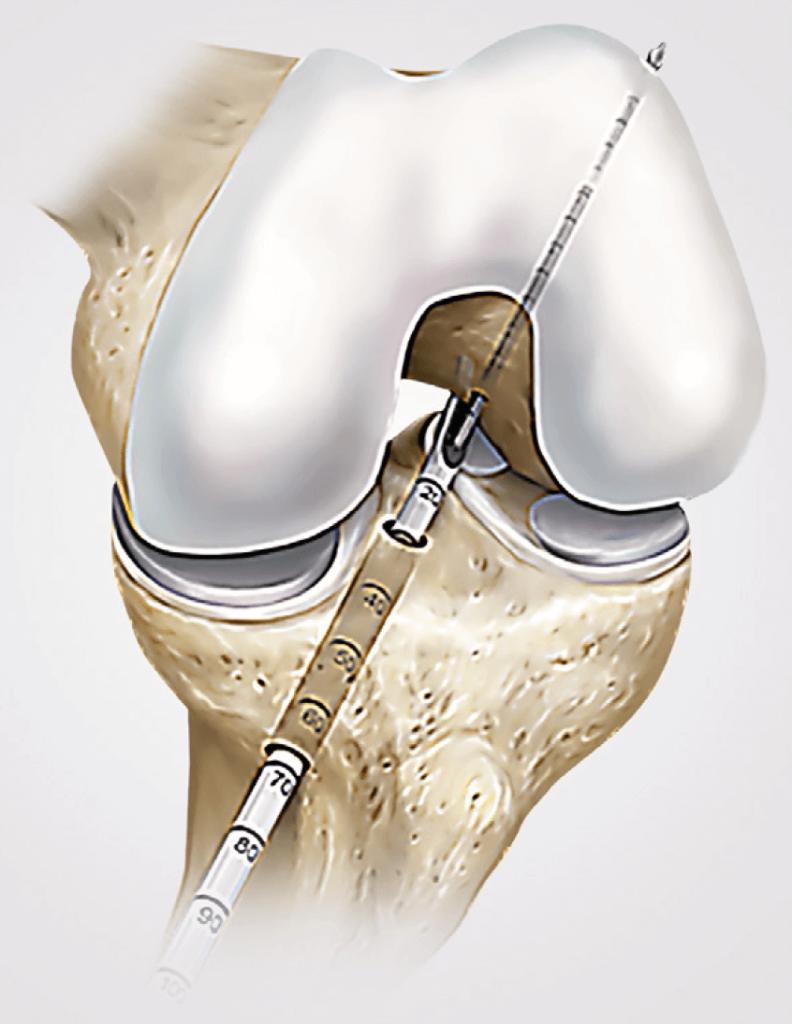 Arthroskopische Kreuzbandoperation mit Präzisionsinstrumenten