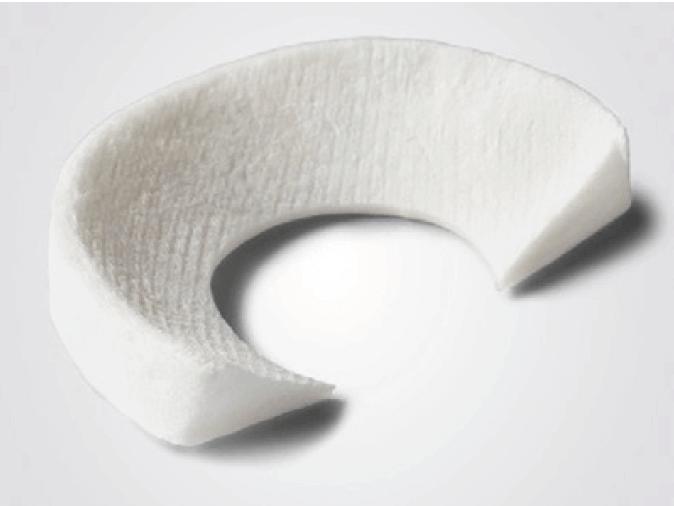Collagen Miniskus Implantat