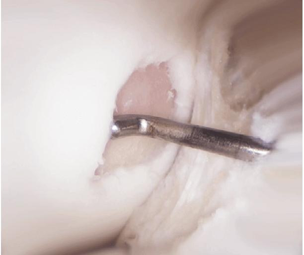 Grosser Knorpelschaden an der Oberschenkelrolle