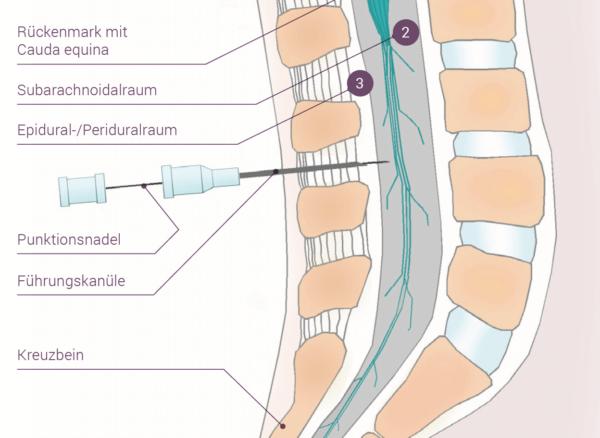 Grafik eines Katheters der in der Wirbelsäule gelegt wird