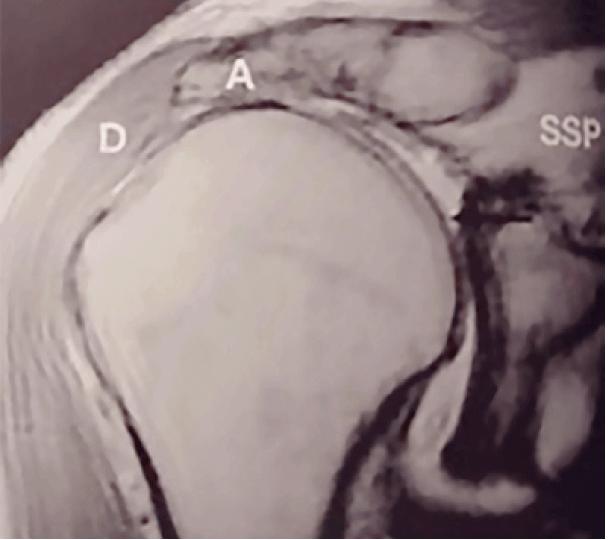 MRI-Bild einer vollständigen Supraspinatusehnen-Ruptur