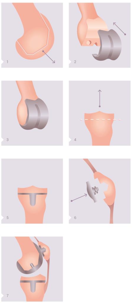 Operationschritte zum Einfügen einer Endoprothese/Knieprothese
