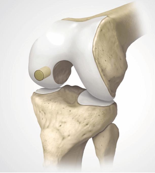Schema Knorpel-Knochen-Transplantat