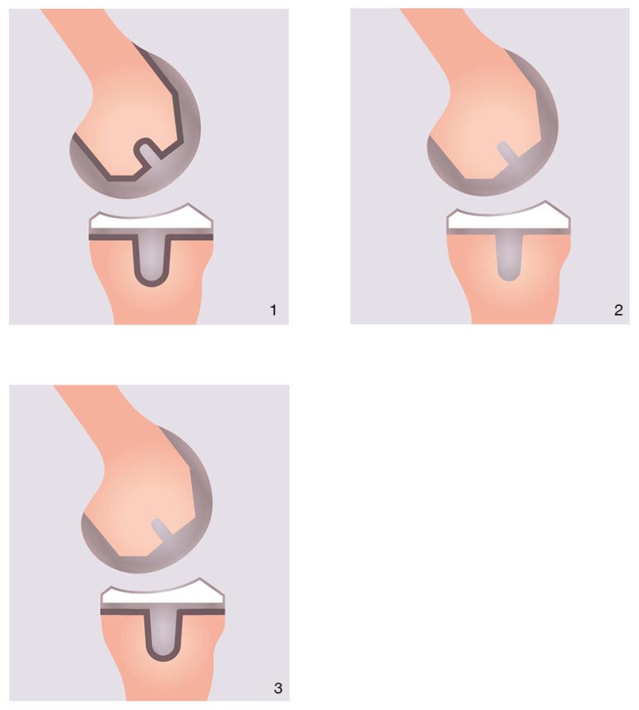 Endoprothesen Darstellung