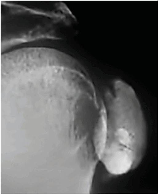 Grosser Kalkherd im Bereich der linken Schulter