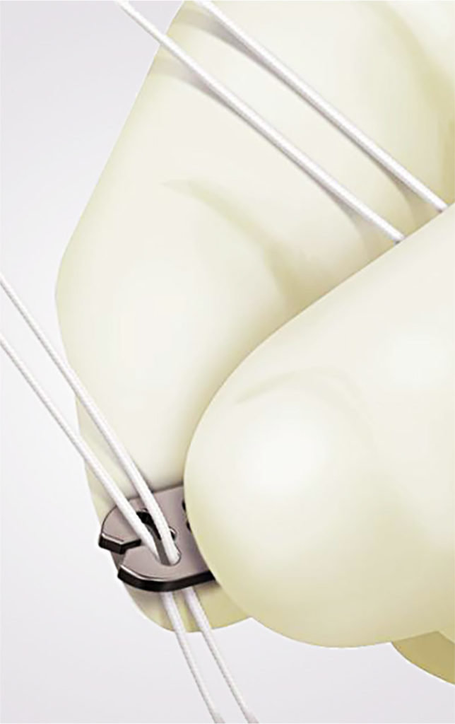 Kreuzband Fixation Chirurgie