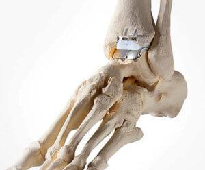 Sprunggelenkprothese